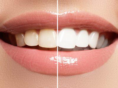 sebelum dan sesudah pemutih gigi